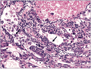 Slide showing the epithelial cells of the hepatopancreas in juvenile shrimp
