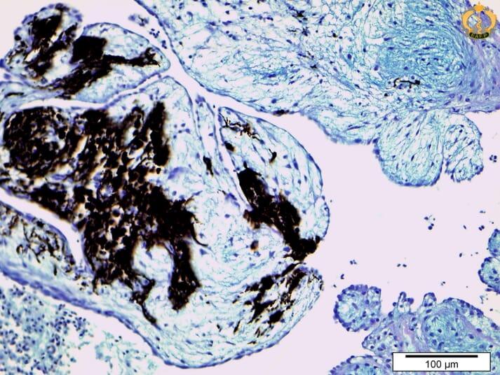 A papillary fibroelastoma with melanin deposition in the heart of an Atlantic salmon